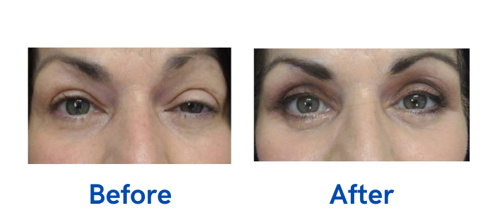 before and after image of eyelid surgery
