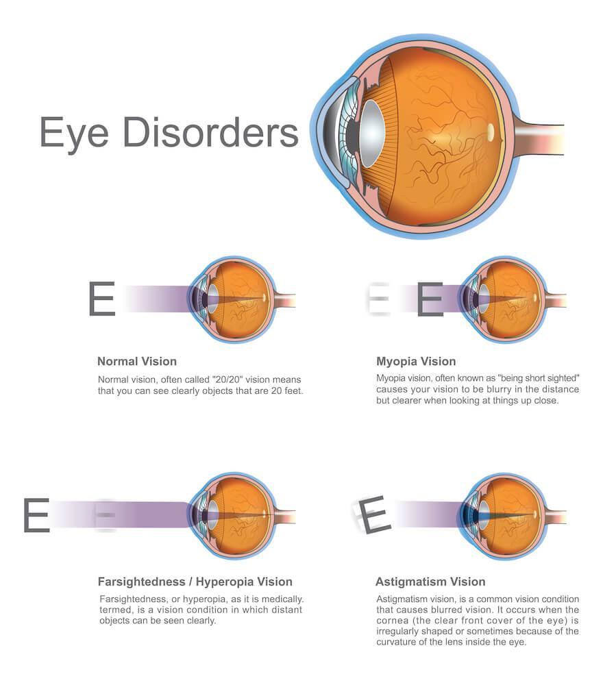 Eye disorders diagram