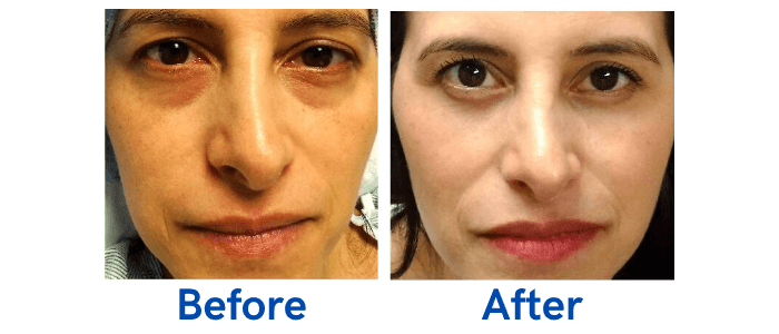 Lower Lid Blepharoplasty before and after photo