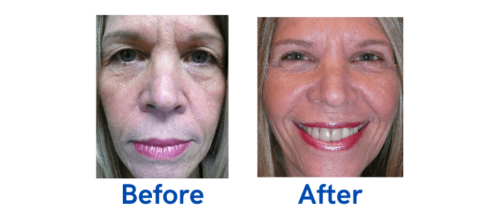 Upper Lid Blepharoplasty before and after