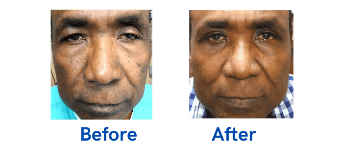 Ptosis + Upper Blepharoplasty before and after