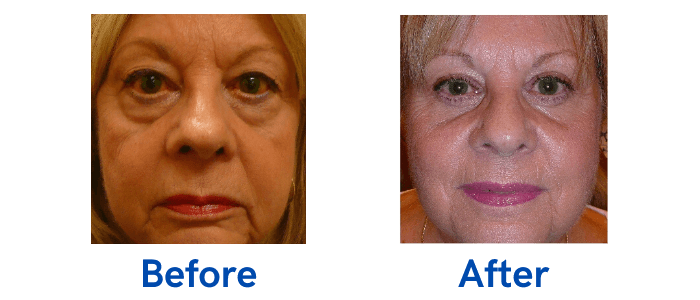 4 Lid Blepharoplasty before and after surgery