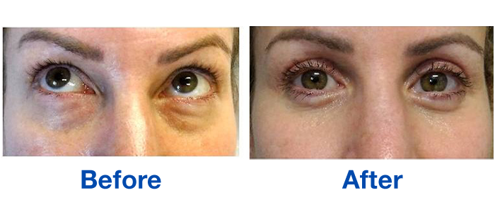 Lower eyelid blepharoplasties